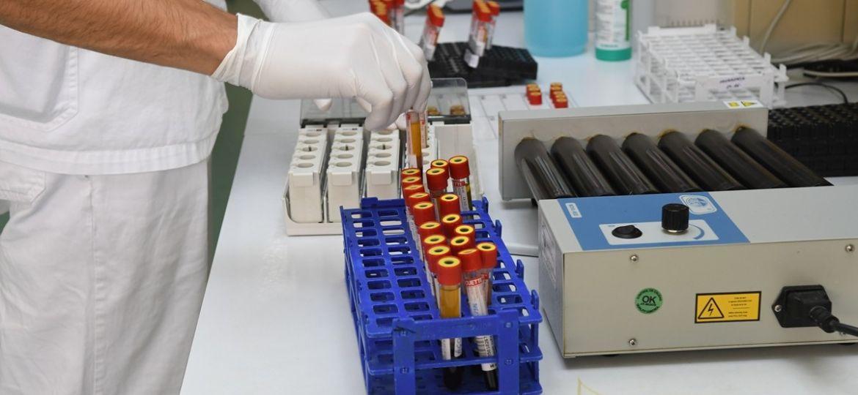 bolnica-seroloski-testovi-korona-laboratorij09